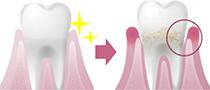 特に意識したいケア習慣「歯ぐきケア」